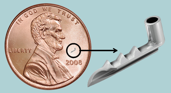 iStent® is a tiny implant that's helped thousands of people with glaucoma successfully manage their intraocular pressure.