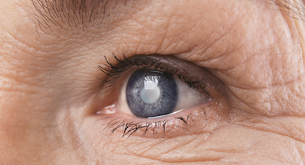 Advanced Cataract Surgery in Mesa, Arizona