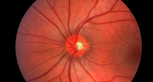 Retina Exams and Referrals to Specialists in Mesa, Arizona