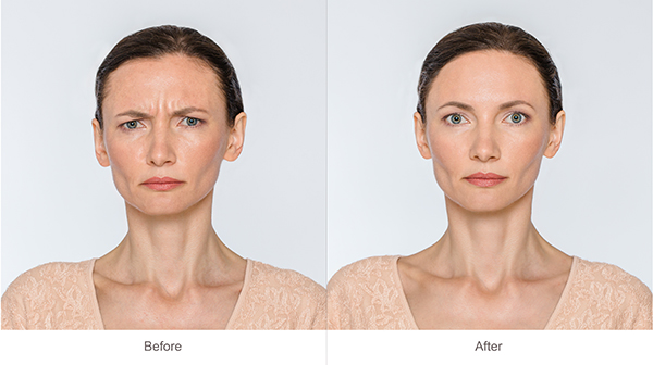 Botox® Cosmetic Injections | East Valley Ophthalmology